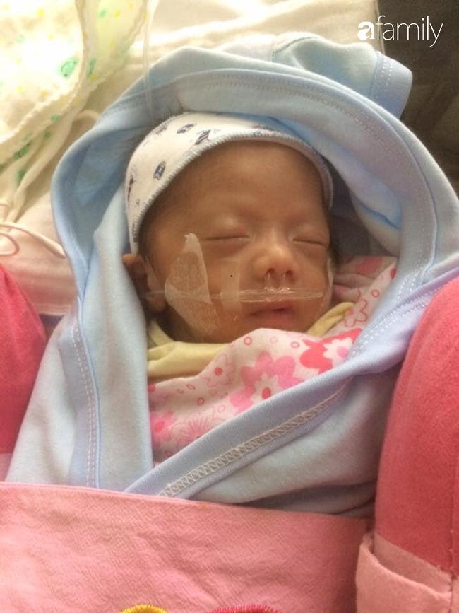 Đang mang thai phải mổ 2 lần vì đau ruột thừa, mẹ Yên Bái bật khóc khi nhìn vết sẹo chằng chịt, muốn sinh thêm con cũng khó - Ảnh 4.