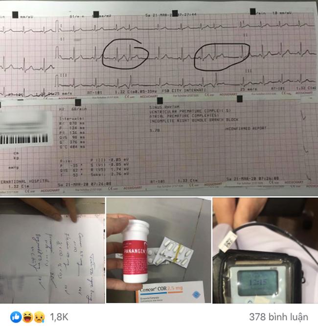 """Cô gái than thở cứ gặp người yêu là """"con tim loạn nhịp"""", phải đeo máy đo nhịp tim suốt 24h, bất ngờ nhất là phản ứng của cư dân mạng - Ảnh 2."""