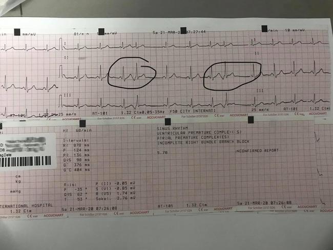 """Cô gái than thở cứ gặp người yêu là """"con tim loạn nhịp"""", phải đeo máy đo nhịp tim suốt 24h, bất ngờ nhất là phản ứng của cư dân mạng - Ảnh 3."""