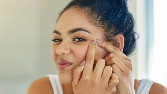 Stress ảnh hưởng thế nào tới sức khỏe da và biện pháp giải quyết tình trạng này - Ảnh 3.