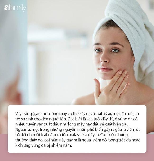 Ít ai biết rằng những thay đổi trên lông mày cũng là dấu hiệu cho thấy sức khỏe đang có vấn đề, đặc biệt là lão hóa sớm - Ảnh 5.