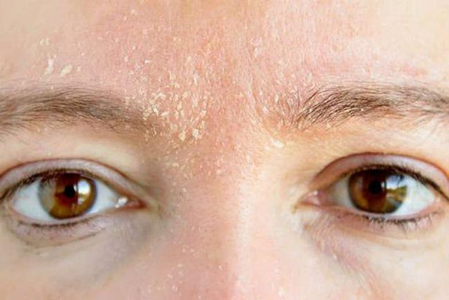 Ít ai biết rằng những thay đổi trên lông mày cũng là dấu hiệu cho thấy sức khỏe đang có vấn đề, đặc biệt là lão hóa sớm - Ảnh 6.