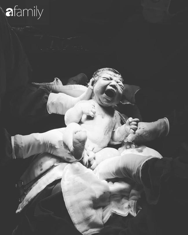 Cận cảnh khoảnh khắc em bé chui ra khỏi bụng mẹ được cô y tá chụp giúp mẹ Đà Lạt, người mẹ nào xem cũng thấy xúc động - Ảnh 5.