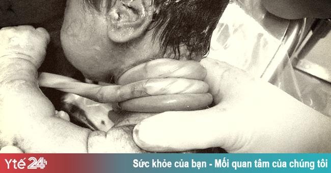 Hy hữu: Một em bé chào đời với dây rốn quấn cổ 4 vòng - Ảnh 1.