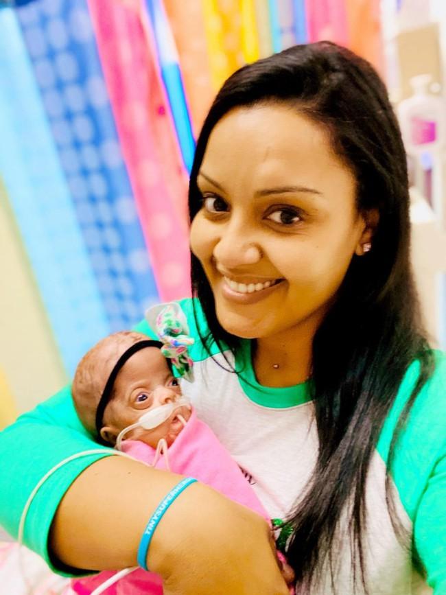 Hình ảnh đáng kinh ngạc về cặp song sinh chào đời sớm chỉ mới được 22 tuần 3 ngày và hành trình sống mạnh liệt khiến ai cũng phải kinh ngạc - Ảnh 4.