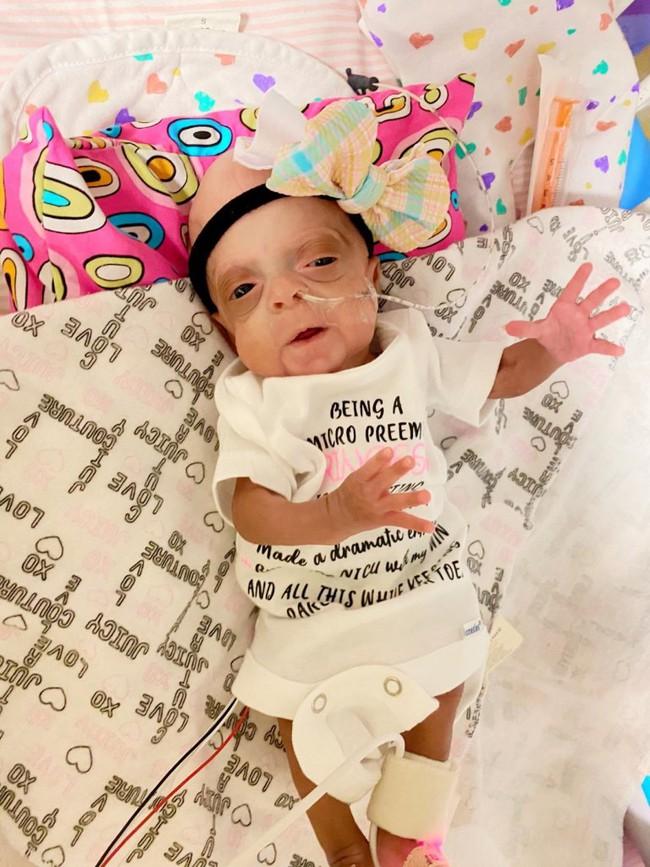 Hình ảnh đáng kinh ngạc về cặp song sinh chào đời sớm chỉ mới được 22 tuần 3 ngày và hành trình sống mạnh liệt khiến ai cũng phải kinh ngạc - Ảnh 7.