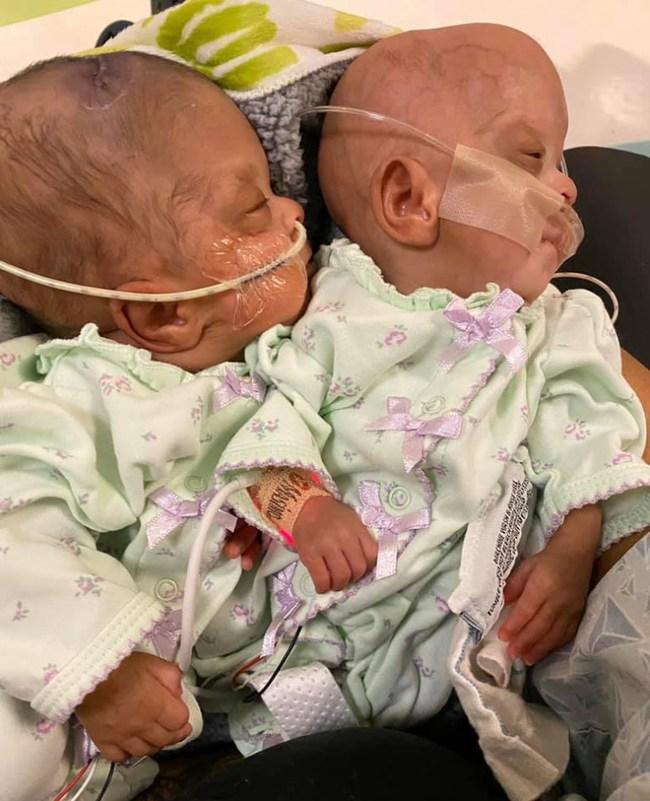Hình ảnh đáng kinh ngạc về cặp song sinh chào đời sớm chỉ mới được 22 tuần 3 ngày và hành trình sống mạnh liệt khiến ai cũng phải kinh ngạc - Ảnh 6.