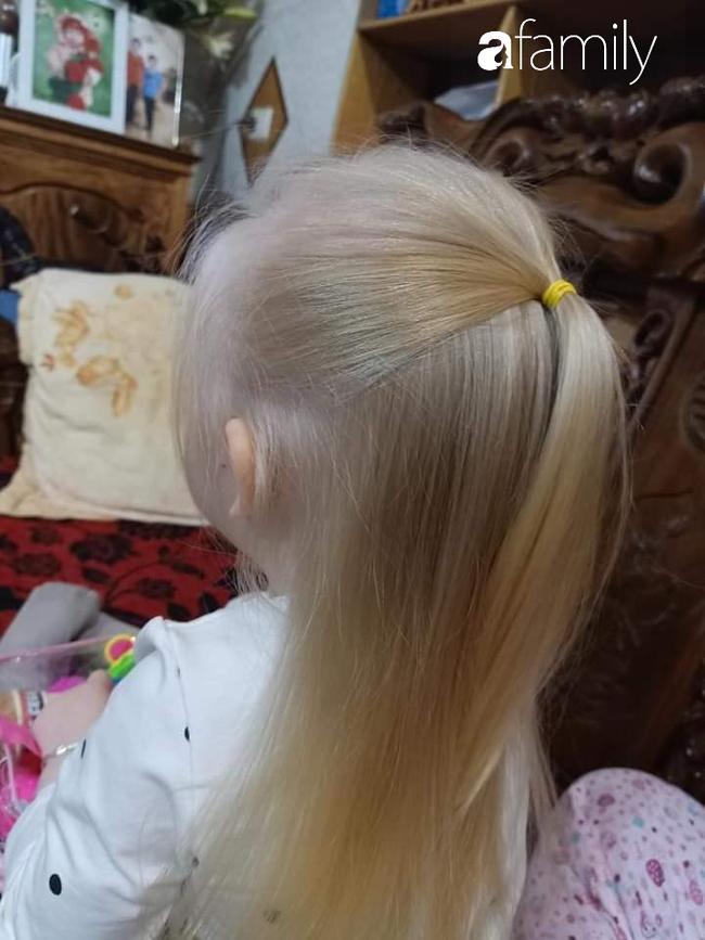 Em bé Nghệ An sinh ra tóc vàng như Tây dù bố mẹ là người Việt, càng lớn càng giống búp bê ai gặp cũng xin chụp ảnh - Ảnh 4.