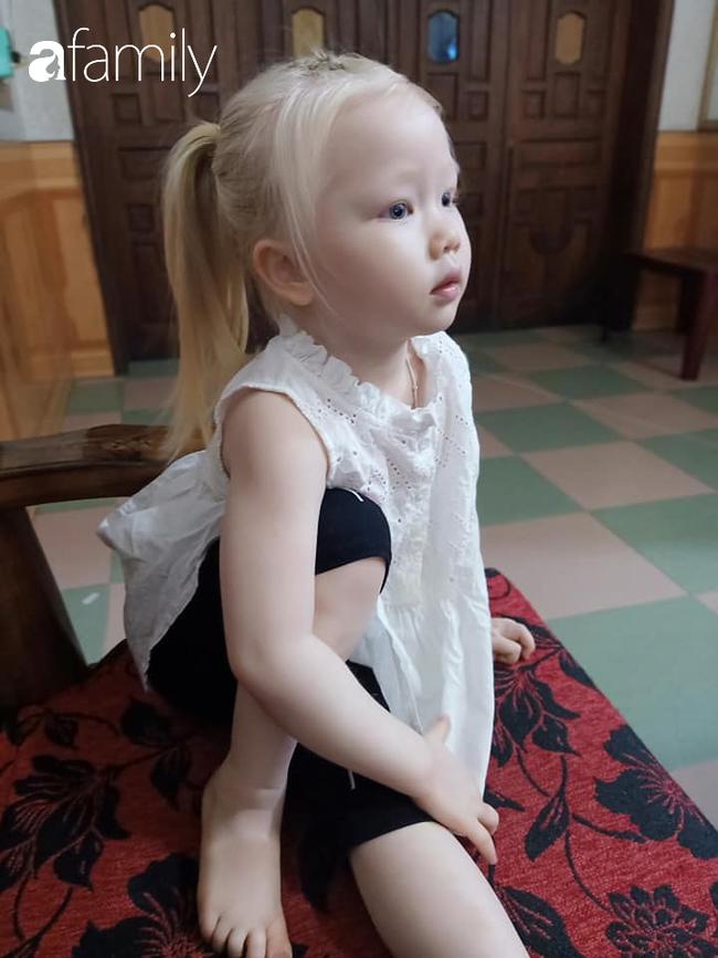 Em bé Nghệ An sinh ra tóc vàng như Tây dù bố mẹ là người Việt, càng lớn càng giống búp bê ai gặp cũng xin chụp ảnh - Ảnh 5.