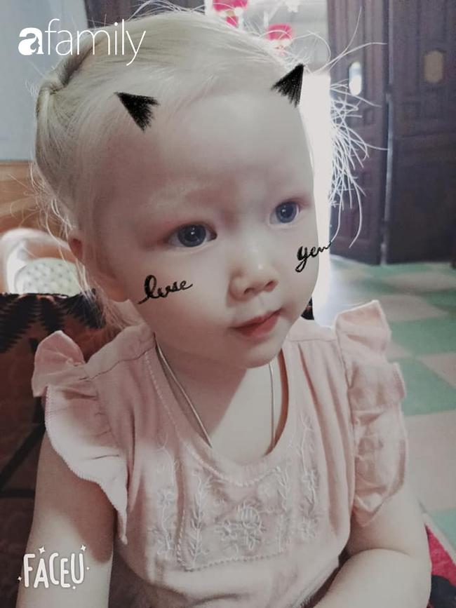 Em bé Nghệ An sinh ra tóc vàng như Tây dù bố mẹ là người Việt, càng lớn càng giống búp bê ai gặp cũng xin chụp ảnh - Ảnh 6.