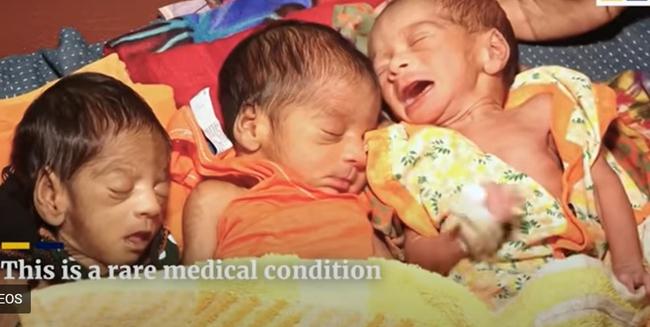 """Vừa sinh con được 26 ngày, bà mẹ bị """"chảy nước"""" ào ạt, các bác sĩ choáng váng khi tiếp tục đón thêm một cặp song sinh nữa chào đời - Ảnh 2."""