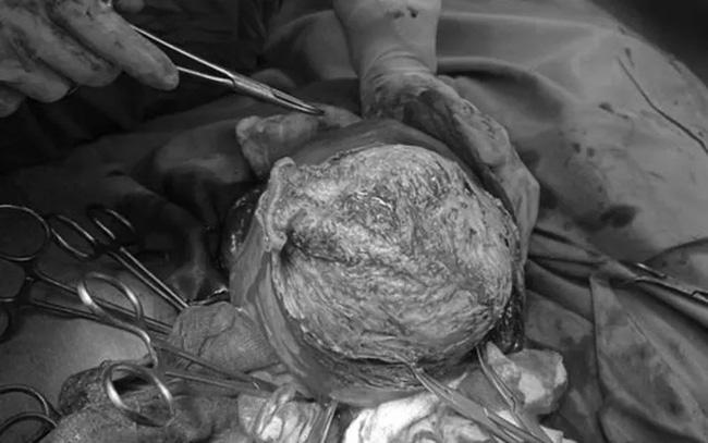 Phẫu thuật lấy thai, bảo tồn tử cung cho sản phụ có khối u xơ tử cung lớn - Ảnh 1.