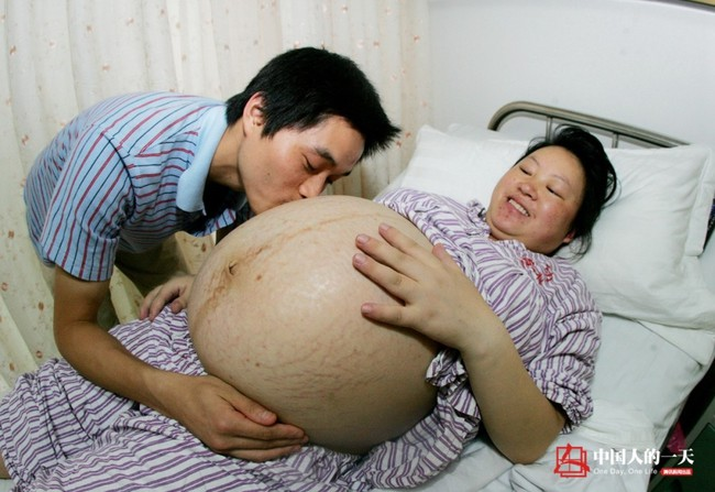 """Hành trình kỳ diệu: Từ chiếc bụng khổng lồ đến cuộc sinh 4 """"thót tim"""" với bé nhẹ nhất chỉ 0.8kg và kết quả là 2 cặp trai gái khỏe mạnh, đáng yêu  - Ảnh 3."""