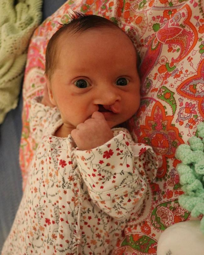 """Siêu âm ở tuần 19 của thai kỳ, bà mẹ vừa thở phào nhẹ nhõm vì con phát triển tốt đã phải """"ngừng thở"""" khi nghe bác sĩ thông báo thêm - Ảnh 2."""