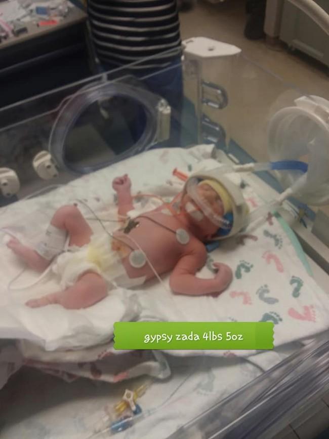Cứ nghĩ bị đau lưng do sỏi thận nên đến bệnh viện kiểm tra, bà mẹ bất ngờ hạ sinh luôn 3 em bé - Ảnh 4.
