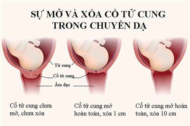 Những điều cơ bản mẹ bầu cần biết về khám cổ tử cung khi chuyển dạ - Ảnh 1.