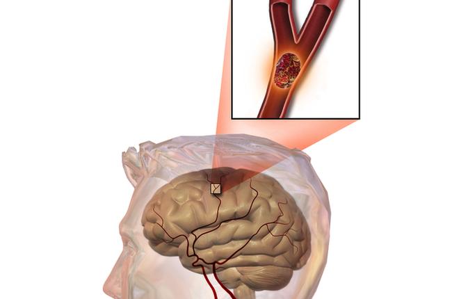 Bất kể nam hay nữ trên 45 tuổi, tránh xa 3 loại thực phẩm, không làm 2 việc để ngừa nhồi máu não và giúp sống thọ - Ảnh 1.