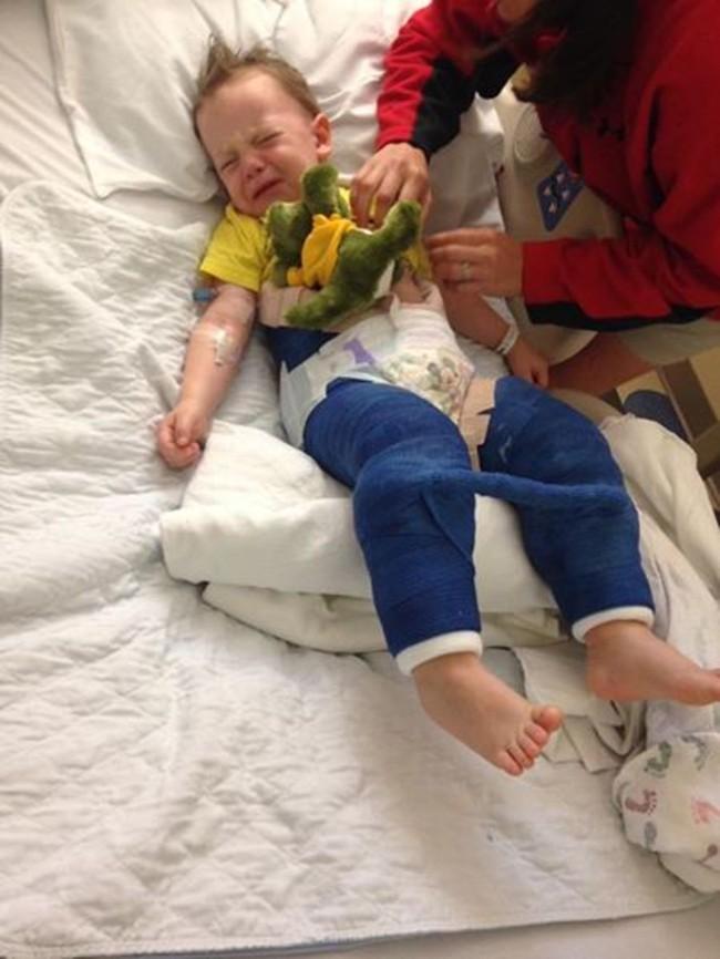 Bé trai 3 tuổi bị gãy xương đùi sau khi nhảy trên bạt nhún lò xo trong khu vui chơi giải trí - Ảnh 1.