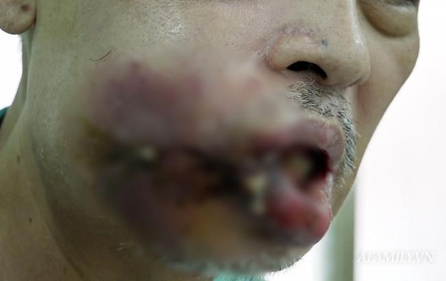 Nặn mụn ở miệng, người đàn ông không ăn được và biến dạng miệng nặng nề - Ảnh 1.