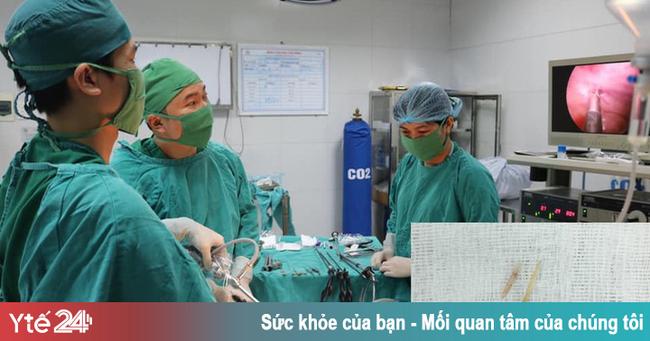 Trẻ đau bụng nhập viện, gia đình tá hỏa khi bác sĩ gắp ra tăm, xương trong dạ dày