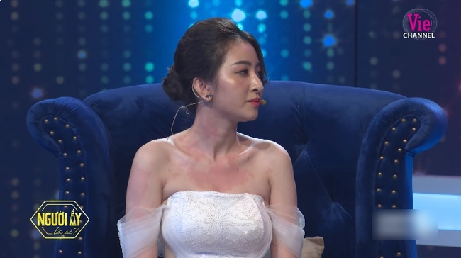"""""""Người ấy là ai?"""": Khán giả xót xa trước hình ảnh nữ chính Huyền Thoại nổi mẫn đỏ trên ngực và tay trong suốt chương trình - Ảnh 1."""