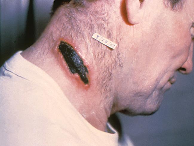 Bệnh than: Căn bệnh lạ gây lở loét da, có thể làm chết người, cần cảnh giác cao trong thời điểm này - Ảnh 2.