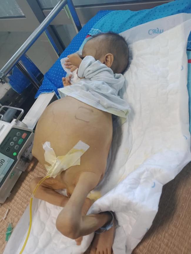 Bức thư đẫm nước mắt của người cha là giáo viên gửi con trai 9 tháng tuổi, cái bụng chực nổ tung vì căn bệnh hiểm nghèo - Ảnh 2.