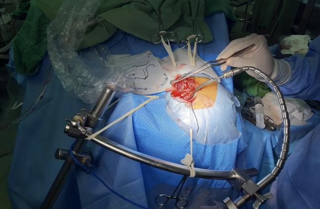 """Lần đầu tiên, BV ở Cần Thơ phẫu thuật kiểu """"lỗ khoá"""" cứu bệnh nhân vỡ mạch máu não - Ảnh 2."""