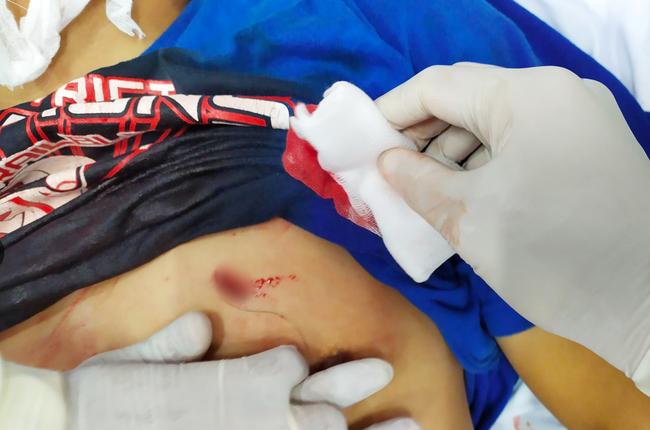 TP.HCM: Người đàn ông bị bạn gái đâm thủng tim phổi nguy kịch được cứu sống - Ảnh 1.