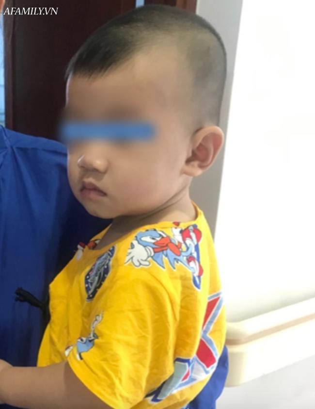Tai nạn kinh hoàng: Mẹ đi pha sữa cho bú, bé trai 10 tháng tuổi bò xuống gầm bàn nuốt mảnh kính bể vào bụng - Ảnh 2.