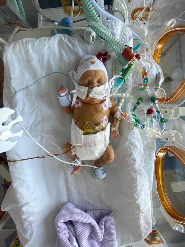 Cứ mỗi lần con vào phòng phẫu thuật, bố mẹ lại được bác sĩ báo hãy chuẩn bị tinh thần - Ảnh 1.