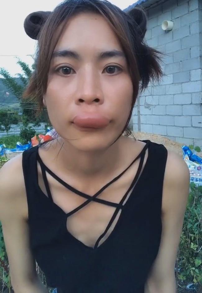 Bị đốt tều môi vì vô tư nếm mật cạnh tổ ong - Ảnh 3.