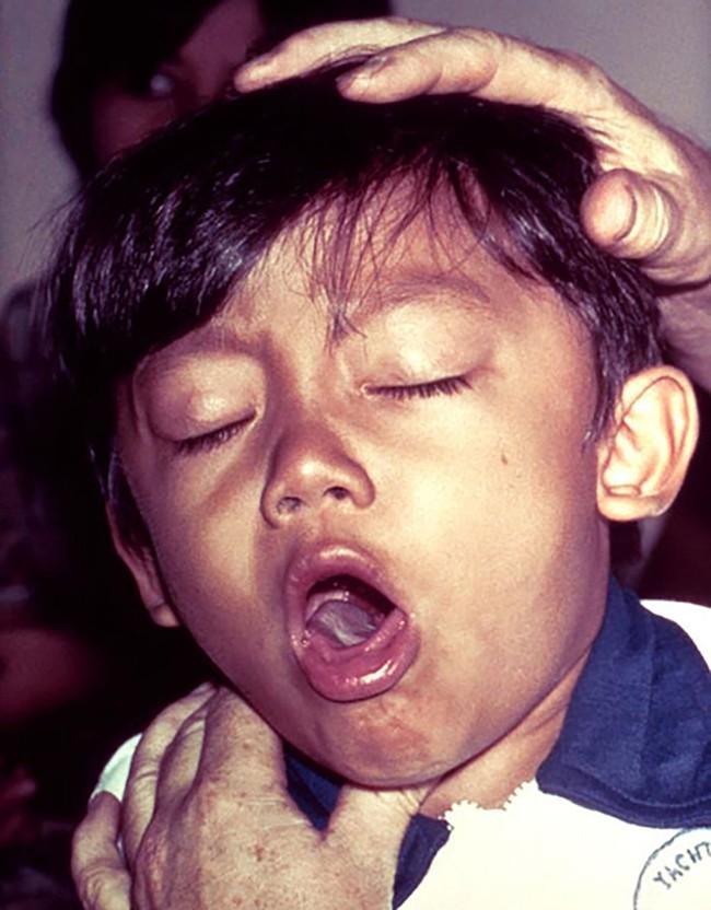 Liên tiếp xuất hiện các ổ bệnh bạch hầu tại Việt Nam: Đây là lý do bạch hầu có thể lây mạnh và vô cùng nguy hiểm cho tính mạng người bệnh - Ảnh 3.