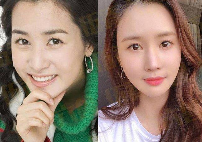 13. Lee Da Hae: Với bộ phim My girl, Lee Da Hae trở thành nữ diễn viên hàng đầu của Hàn Quốc. Dù xinh đẹp nhưng Lee Da Hae vẫn luôn cố gắng khiến bản thân phải thật hoàn hảo bằng những cuộc phẫu thuật thẩm mỹ, làm cho gương mặt trở nên đơ cứng. Những năm qua Lee Da Hae không còn hoạt động nhiều trong showbiz, cô chuyển hướng sang làm blogger.