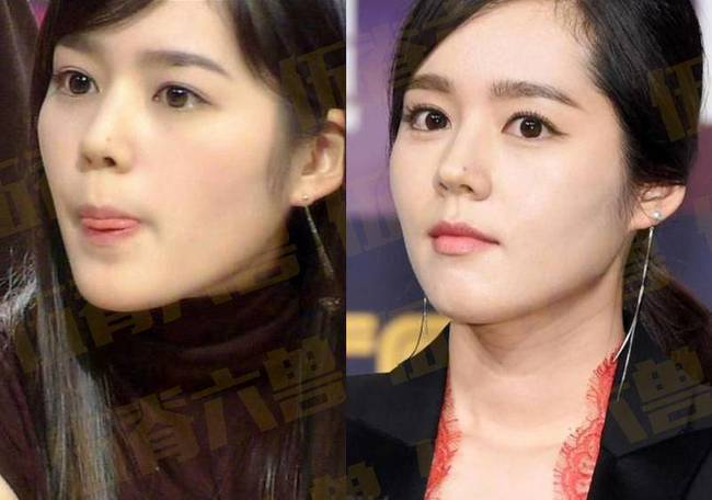 6. Han Ga In: Sau khi kết hôn năm 2005, Han Ga In không còn đóng phim quá nhiều nhưng cô vẫn luôn là nữ diễn viên hàng đầu của Kbiz. Gương mặt xinh đẹp cùng sống mũi cao mà nhiều người mơ ước, Han Ga In sau nhiều năm vẫn đẹp như những ngày đầu mới bước chân vào showbiz.
