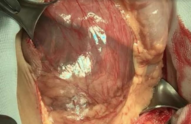 Hàng loạt bệnh nhân bị vỡ túi phình động mạch chủ bụng nguy kịch: Ai hay hút thuốc lá, ăn nhiều mỡ hãy cẩn thận! - Ảnh 2.