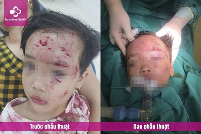 Bé gái 3 tuổi bị chó nhà hàng xóm cắn nhiều vết thương nặng, phức tạp vùng hàm mặt - Ảnh 1.