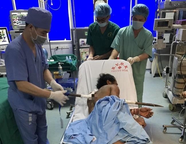 Thanh Hóa: Kịp thời cứu sống người đàn ông bị thanh xà beng đâm xuyên người - Ảnh 2.