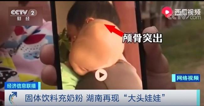 """Trung Quốc: Cửa hàng bán """"sữa bột"""" đặc biệt khiến trẻ bị chứng """"đầu to"""" đã bị phạt 6,5 tỷ đồng - Ảnh 1."""