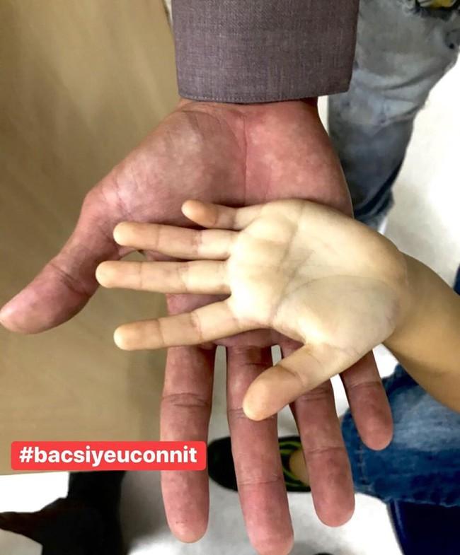 Hình ảnh bàn tay của bé gái uống hơn 10 hộp sữa tươi mỗi ngày khiến ai cũng giật mình, bố mẹ nào còn chăm con theo kiểu này cần thay đổi ngay