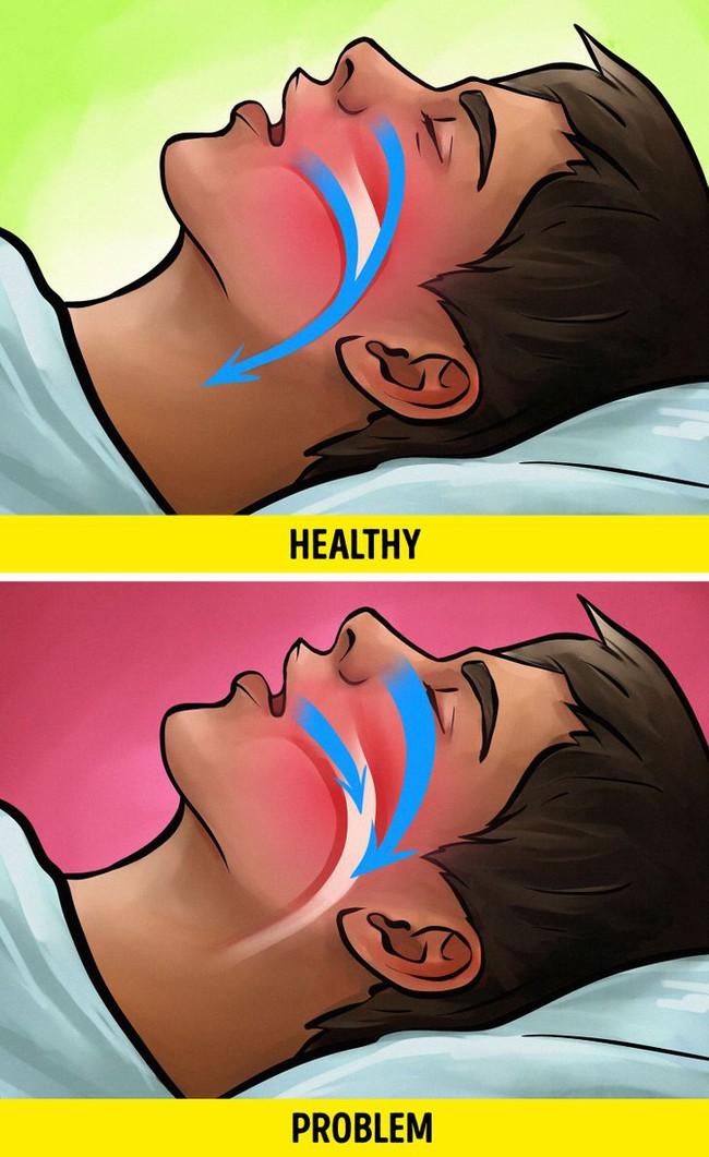 Nếu thấy mình ngủ nhiều vào ban ngày, ngủ bất kì lúc nào thì nên đi khám ngay vì nguyên nhân có thể liên quan đến tim, tuyến giáp - Ảnh 6.