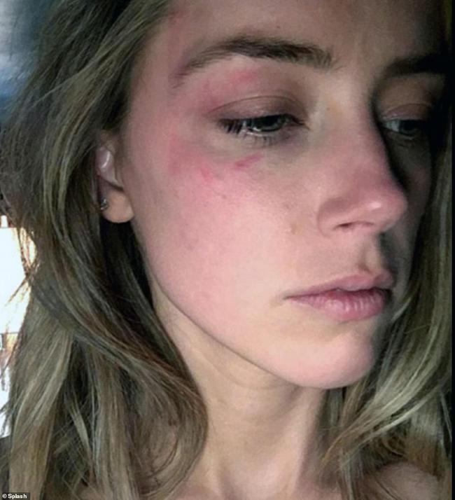"""Amber Heard """"đại tiện"""" ngay trên giường chỉ vì Johnny Depp về muộn 2 tiếng trong tiệc sinh nhật cô - Ảnh 3."""