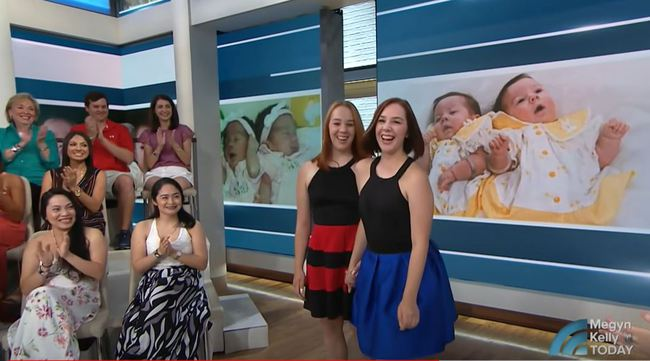 2 bé gái sinh đôi dính liền, cha mẹ mất 7 tháng mới đưa ra quyết định tách rời các con, 17 năm sau ai cũng gật đầu mãn nguyện khi nhìn thấy nụ cười trên khuôn mặt các em - Ảnh 10.
