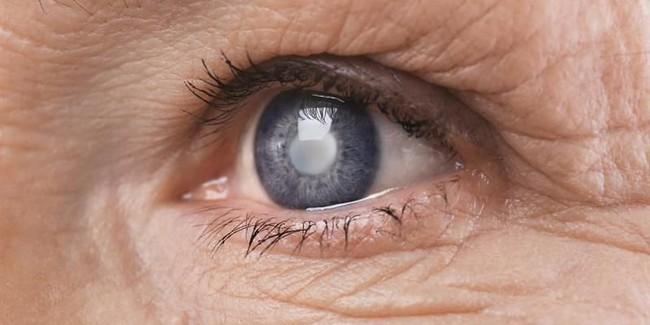 Căn bệnh khiến nữ MC xinh đẹp của VTV có thể bị mù cả 2 mắt: Nhiều người trẻ cũng có nguy cơ nếu thấy dấu hiệu này mà không nhanh chóng đi khám - Ảnh 5.
