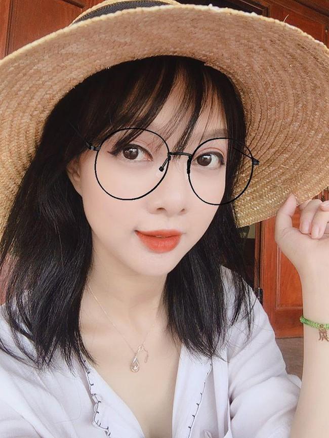 Căn bệnh khiến nữ MC xinh đẹp của VTV có thể bị mù cả 2 mắt: Nhiều người trẻ cũng có nguy cơ nếu thấy dấu hiệu này mà không nhanh chóng đi khám - Ảnh 2.