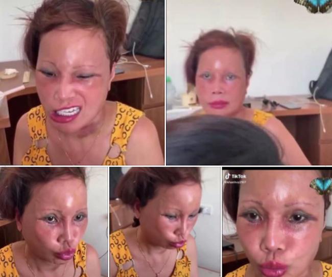 """""""Cô dâu 63 tuổi"""" ở Cao Bằng lại tiếp tục lộ diện khuôn mặt biến dạng, sưng phù không thể nhận ra - Ảnh 1."""