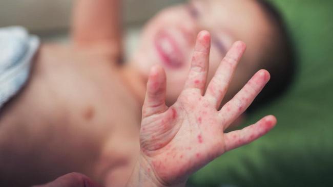 Trẻ nhập viện do mắc tay chân miệng tăng cao, chuyên gia chỉ cách chăm sóc trẻ bị bệnh tại nhà hiệu quả - Ảnh 3.