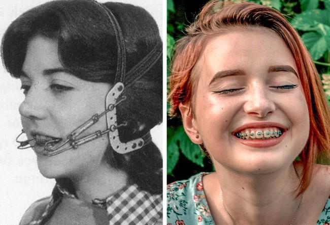 Chị em phụ nữ của 100 năm trước cùng với những phương pháp làm đẹp đôi khi trông đáng sợ không khác gì phim kinh dị - Ảnh 12.