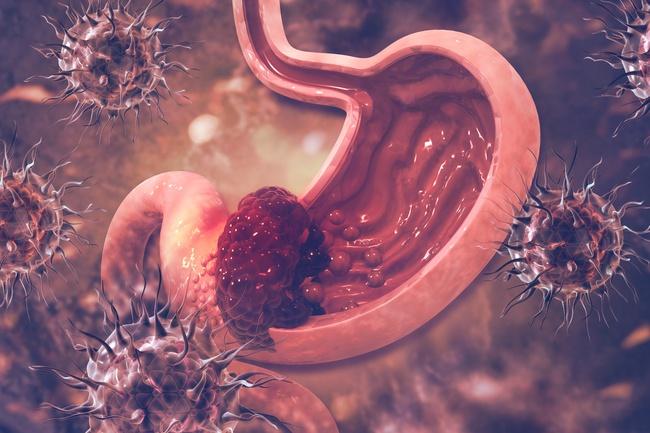 """Có 4 loại ung thư cực dễ """"lây lan"""" giữa vợ và chồng, nếu 1 trong 2 người mắc bệnh thì người kia cần đi khám ung thư khẩn cấp - Ảnh 5."""