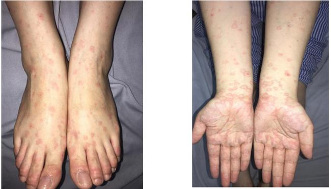Người phụ nữ  nhiễm Herpes sau phun xăm môi với tổn thương dát đỏ vùng cẳng bàn tay 2 bên - Ảnh 2.